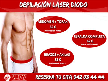 depilacion laser diodo